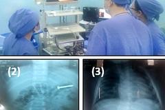 Bệnh viện cùng lúc cấp cứu 2 bệnh nhi nuốt đinh suýt thủng ruột non