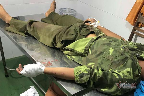 Hơn 20 lâm tặc vây chém đứt gân tay kiểm lâm để giải cứu đồng bọn
