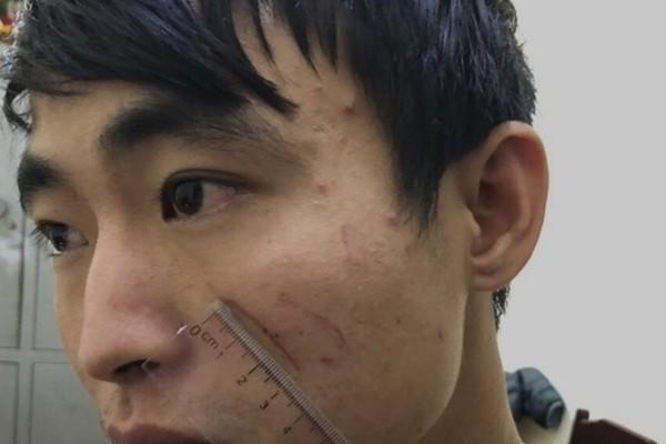 Nguyên nhân cô gái trẻ bị gã bạn sát hại trong nhà nghỉ ở Thanh Hóa