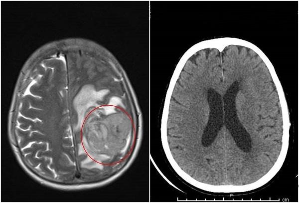 Người phụ nữ nguy kịch do khối u não khổng lồ