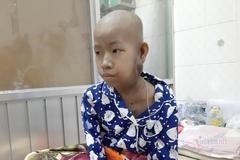 Nghị lực và ước mơ của bé gái dân tộc Khmer bị ung thư tuyến mang tai