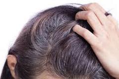 Bộ 3 Tóc Haco: hỗ trợ giảm khô xơ, gãy rụng ở tóc