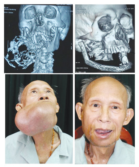 Plastic surgery,Dr Nguyen Quang Duc,the Central Military Hospital 108,health