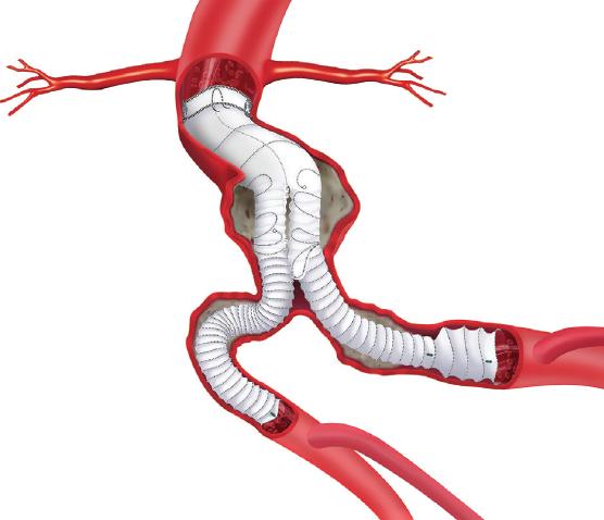 Phát hiện phình động mạch chủ bụng kịp thời giúp người đàn ông thoát án tử