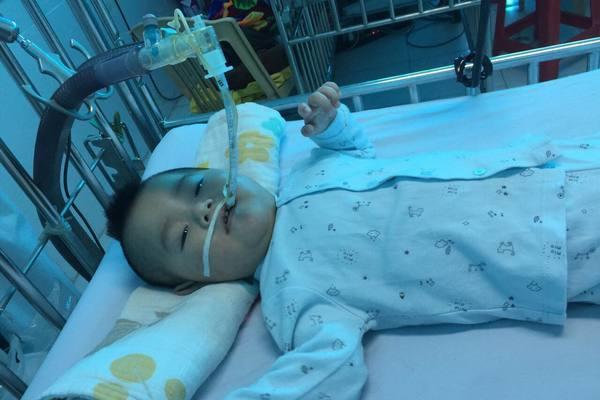 Xót xa bé 14 tháng tuổi phải dùng máy thở để duy trì sự sống