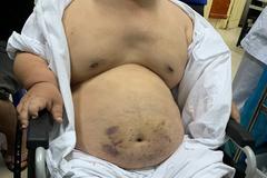 Người đàn ông 1,2m nặng 60kg khiến bác sĩ không lấy được mạch máu