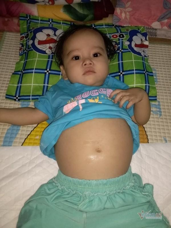 Trao hơn 80 triệu đồng cho bé gái đáng thương đón Tết tại bệnh viện