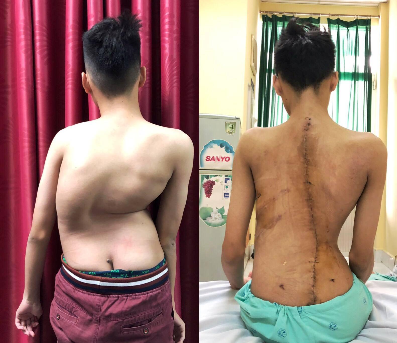 Ca phẫu thuật giúp thiếu niên 17 tuổi cao thêm 8cm sau 1 đêm