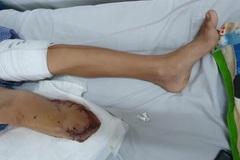 Bé trai 12 tuổi lái xe máy ngã phải cưa chân