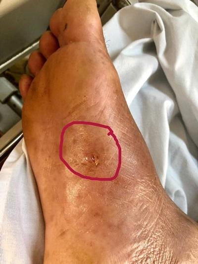 Người đàn ông nguy kịch vì chủ quan sau khi bị gai nhọn đâm vào chân