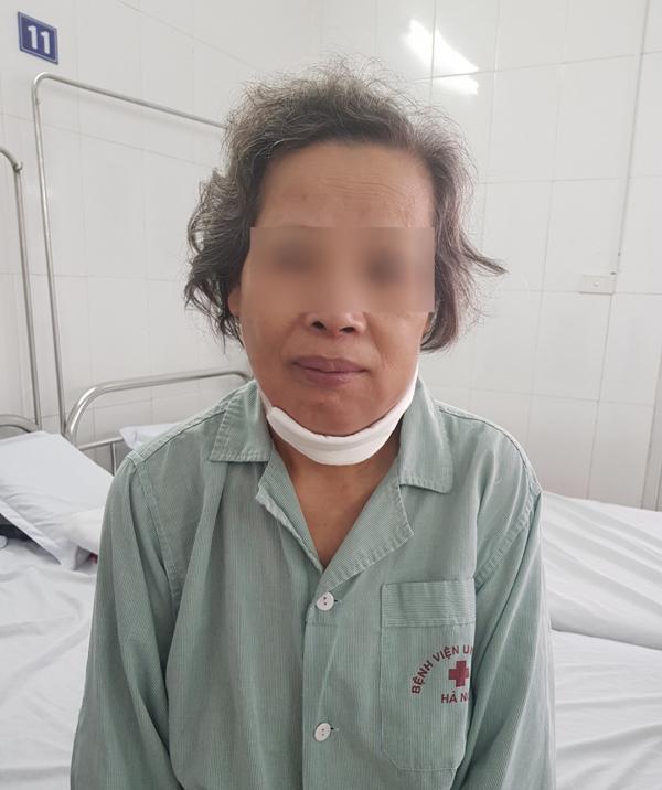 Người phụ nữ Hà Nội bị ung thư lợi, phải cắt hàm