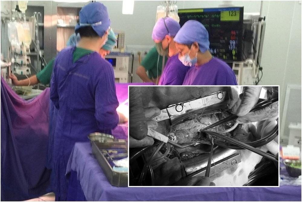 Ca phẫu thuật xuyên đêm cứu bệnh nhân vỡ tim do tai nạn giao thông