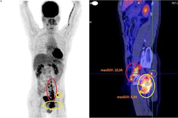ung thư máu,ung thư xương,ung thư di căn,bệnh viện bạch mai