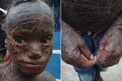 """Cậu bé """"người rắn"""", 6 tuần thay da một lần"""