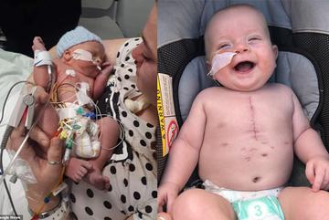 Bác sĩ phẫu thuật dùng van tim bò thay van tim cho trẻ 10 tháng