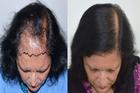 Sự thật về phương pháp cấy tóc được ví như 'đũa thần' chữa hói đầu