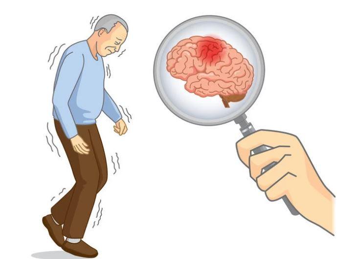 3 đặc điểm xuất hiện khi thức dậy vào buổi sáng cảnh báo bệnh nhồi máu não