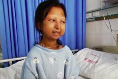 Cô gái tử vong vì ăn cơm với ớt suốt nhiều năm để tiết kiệm tiền