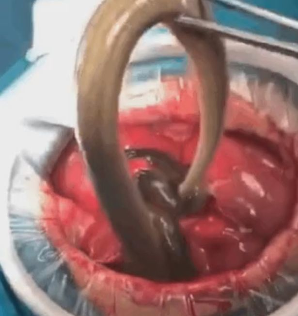 Perforation of the intestine because of devouring raw eel to cure constipation