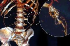 Thủng ruột vì nuốt chửng lươn sống chữa táo bón