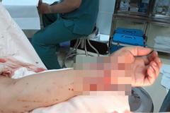 Tạm giữ nghi phạm chém đứt lìa tay người phụ nữ trong tiệc tất niên