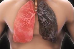 Mắc ung thư phổi sống được bao lâu?
