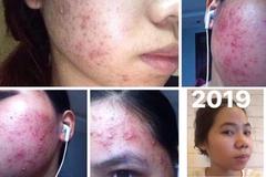 Xu hướng làm đẹp 2020: Bổ sung lợi khuẩn để làm đẹp da