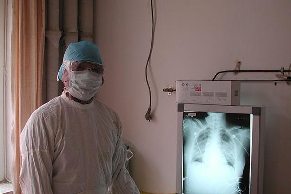 Cảnh báo của bác sĩ Trung Quốc phục hồi sau nhiễm virus corona