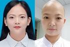 Nữ y tá ở 'tâm bão' Vũ Hán cạo trọc đầu để tránh lây nhiễm chéo virus corona