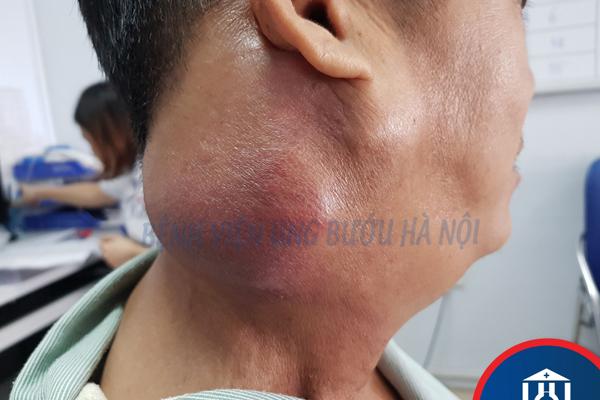Người đàn ông Hà Nội 43 tuổi sốc khi bị 2 ung thư giai đoạn cuối cùng lúc
