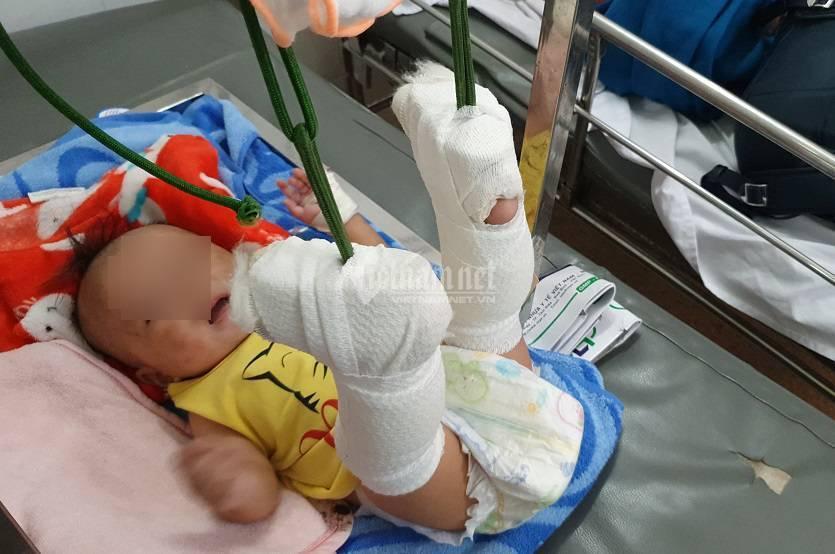 Bé 4 tháng tuổi bị đánh gãy 2 chân, xuất huyết não, bố thừa nhận do tức vợ