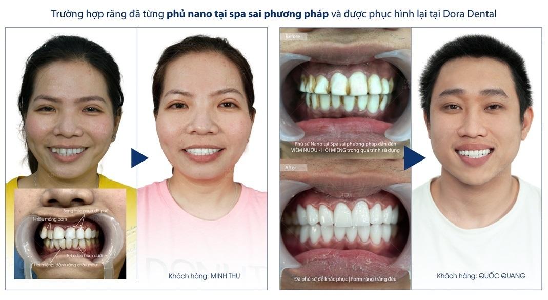 Địa chỉ phục hình răng sứ thẩm mỹ ở TP.HCM