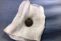 Gắp đồng xu kẹt trong thực quản bé gái 3 tuổi