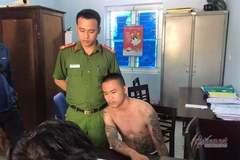 Con trai phó công an xã bị kẻ nghi ngáo đá đánh nhập viện
