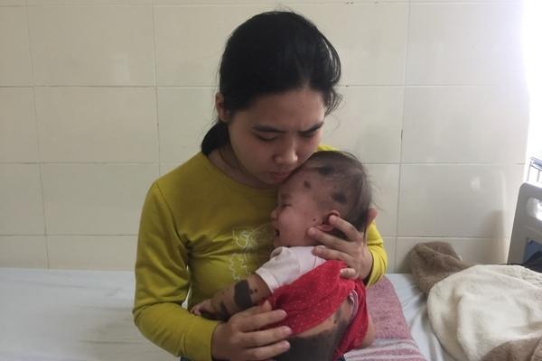 Quặn lòng trước cảnh bé gái chưa đầy 2 tuổi ung thư xâm lấn khắp cơ thể