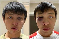 Du học sinh ở Anh tìm nhân chứng sau khi bị tấn công liên quan đến virus corona