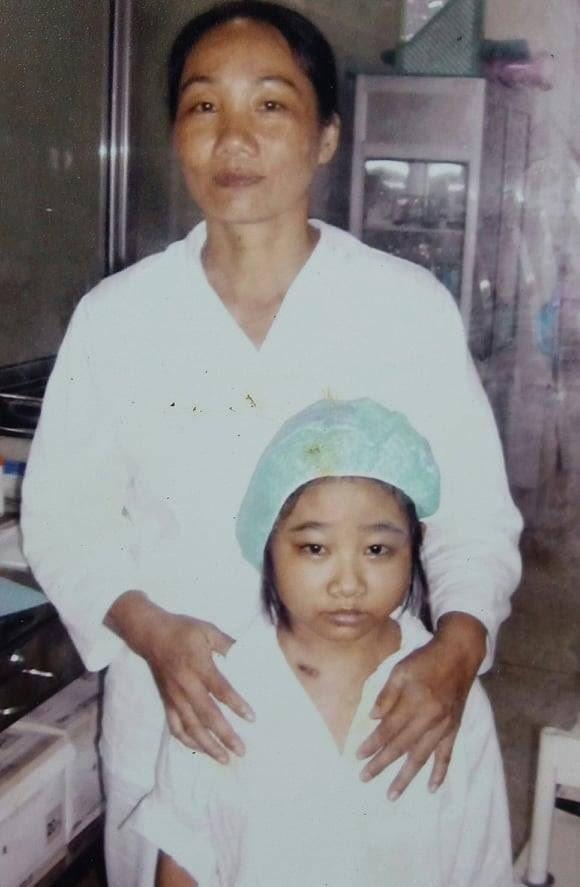 Quyết định táo bạo của người mẹ trong ca ghép thận ở Việt Nam 15 năm trước