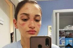 Nữ y tá Italia mặt trầy xước, bộc bạch nỗi cơ cực chống Covid-19