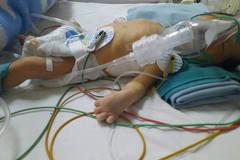 Mẹ hóa điên dại khi con vừa sinh đã bị bệnh tim quái ác