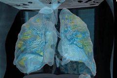Video hé lộ quá trình virus Covid-19 tấn công phổi người