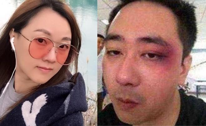 Tài tử Trung Quốc bị vợ đánh đập tàn nhẫn phải nhập viện
