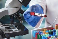 Thế giới 'khát' bộ xét nghiệm Covid-19, các doanh nghiệp TQ bội thu