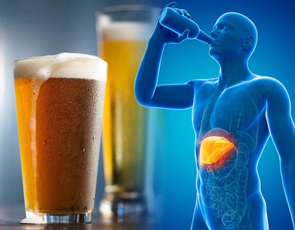'Giải cứu' gan trước tác hại của bia rượu