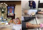Bắt khẩn cấp cha dượng và mẹ bé gái tử vong nghi bị tra tấn ở Hà Nội