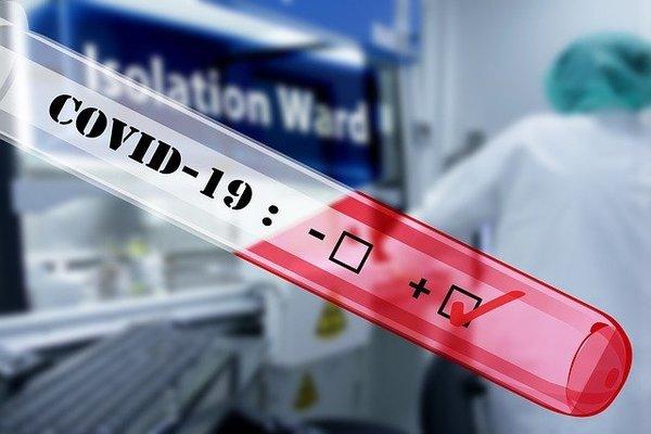 PGĐ BV Nhiệt đới chia sẻ quy trình phát hiện virus SARS-CoV-2