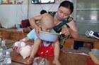 Con trai bại não, con gái ung thư, gia đình nghèo rơi vào bế tắc
