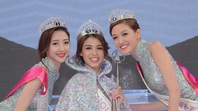 TVB lao đao vì lộ cảnh phản cảm trên sóng và tai tiếng đời tư nghệ sĩ