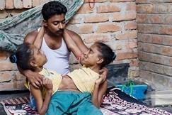 Chuyện tình cảm động của chàng trai với 2 chị em song sinh dính liền thân