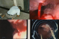 Cứu người đàn ông Hà Nội ung thư giai đoạn cuối nôn ra cốc máu