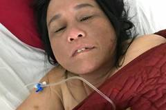 Goá chồng, mất con, người đàn bà khốn cùng đột quỵ không tiền mổ não